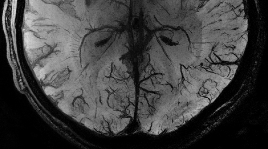 Efficient detection of cerebral microbleeds on 7.0 T MR images using the radial symmetry transform