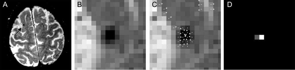 Semi-Automated Detection of Cerebral Microbleeds on 3.0 T MR Images